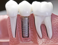 Dental Implant Training Services